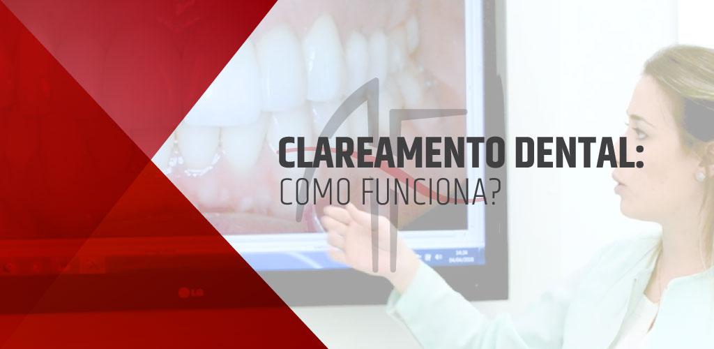 Como Funciona O Clareamento Dental Blog Odontologia Fedeli